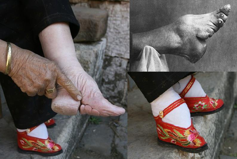 Foot Binding example (67K)